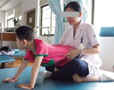 肌张力低下脑瘫患儿正在训练
